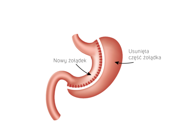 rękawowa resekcja żołądka