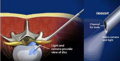 Endoskopowa chirurgia kręgosłupa