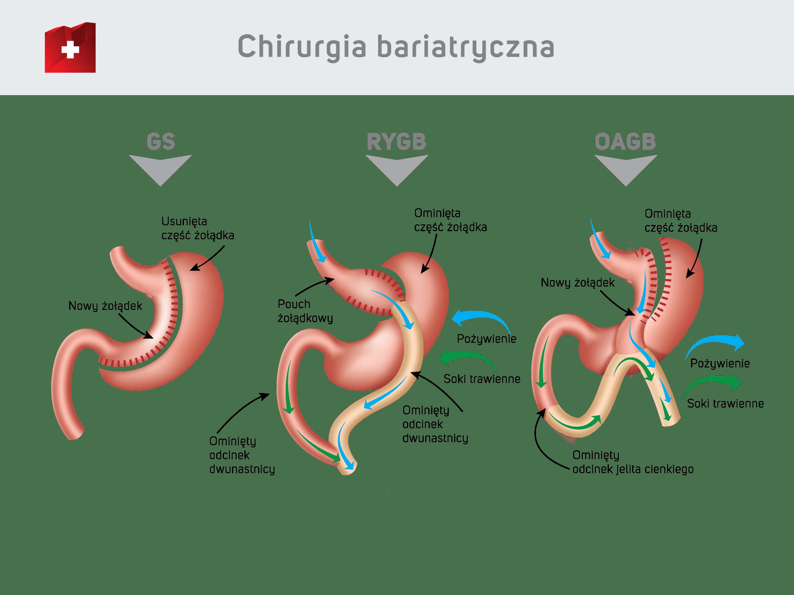 Chrirurgia bariatryczna - zabiegi GS / RYGB / OAGB