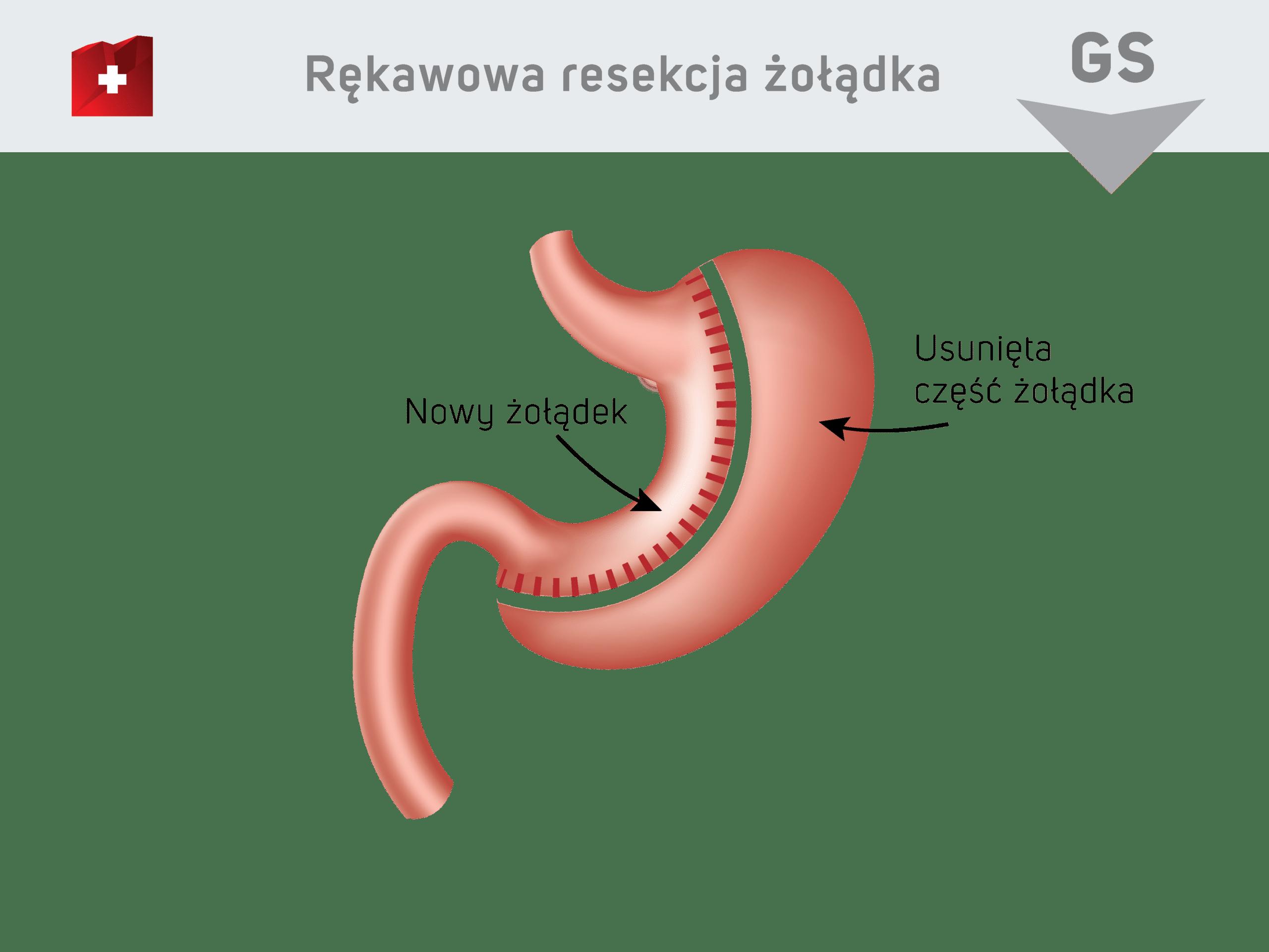Rękawowa resekcja żołądka - nowy żołądek / usunieta część żołądka
