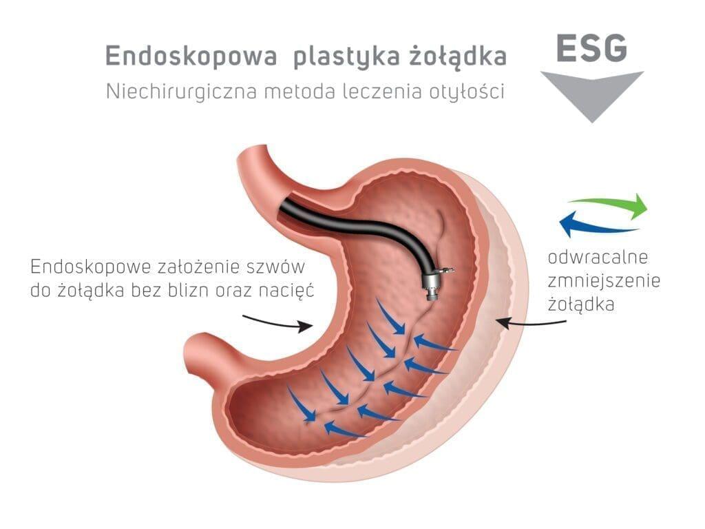 Endoskopowa plastyka żołądka ESG - niechirugiczna metoda leczenia otyłości - odwracalne zmniejszenie żołądka