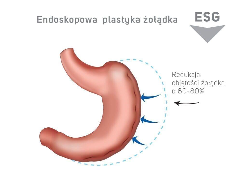Endoskopowa plastyka żołądka ESG - redukcja objętości żołądka o 60-80%